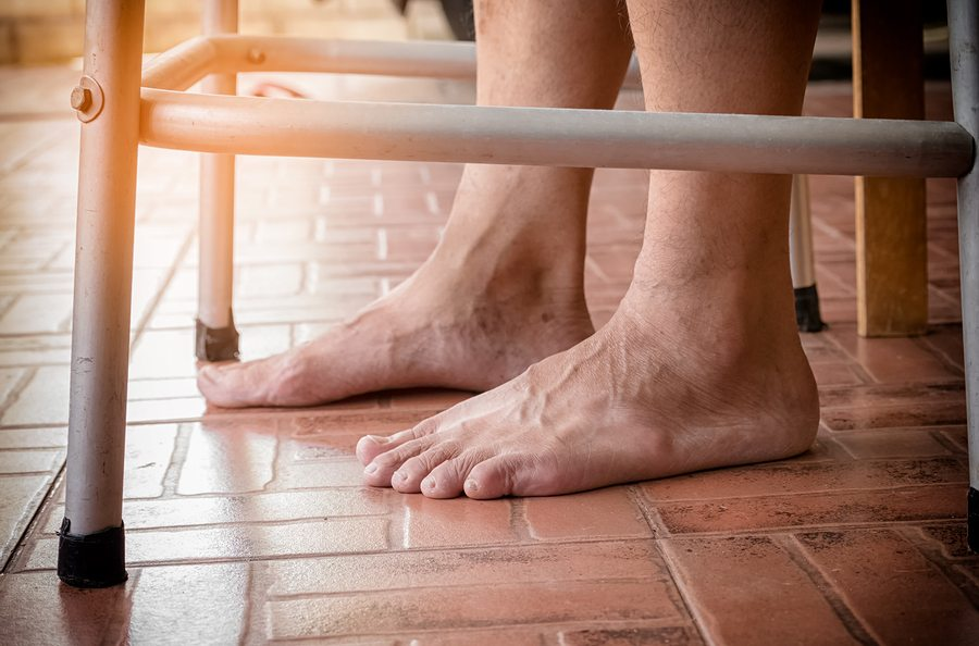 Home Care in East Windsor NJ: Diabetes and Foot Complications